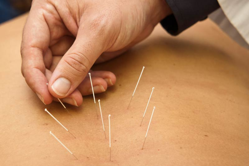 acupuntura-corporal