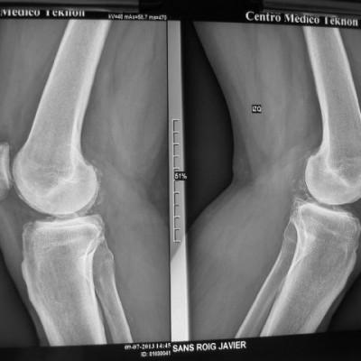 Artrosi de genolls