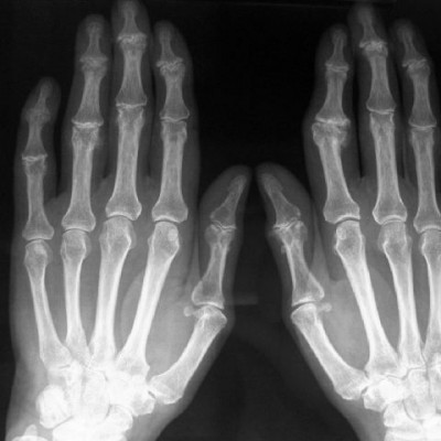 Artrosi de mans