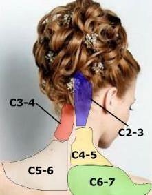 Dolor de las articulaciones cervicales C2-C7