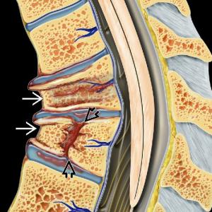 Fractures vertebrals