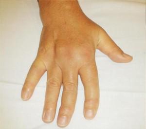 El metotrexat en el tractament de l'artritis reumatoide