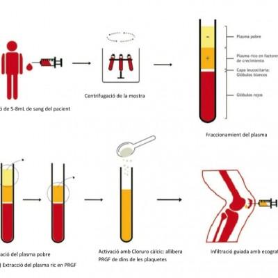 Tractament amb Factors de Creixement Reumatek
