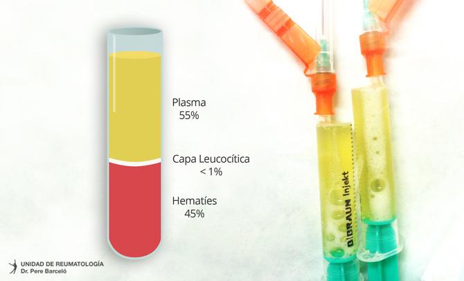 Tratamiento puntero en Reumatología: Pasma rico en factores de crecimiento. Una nueva herramienta para el Reumatólogo.